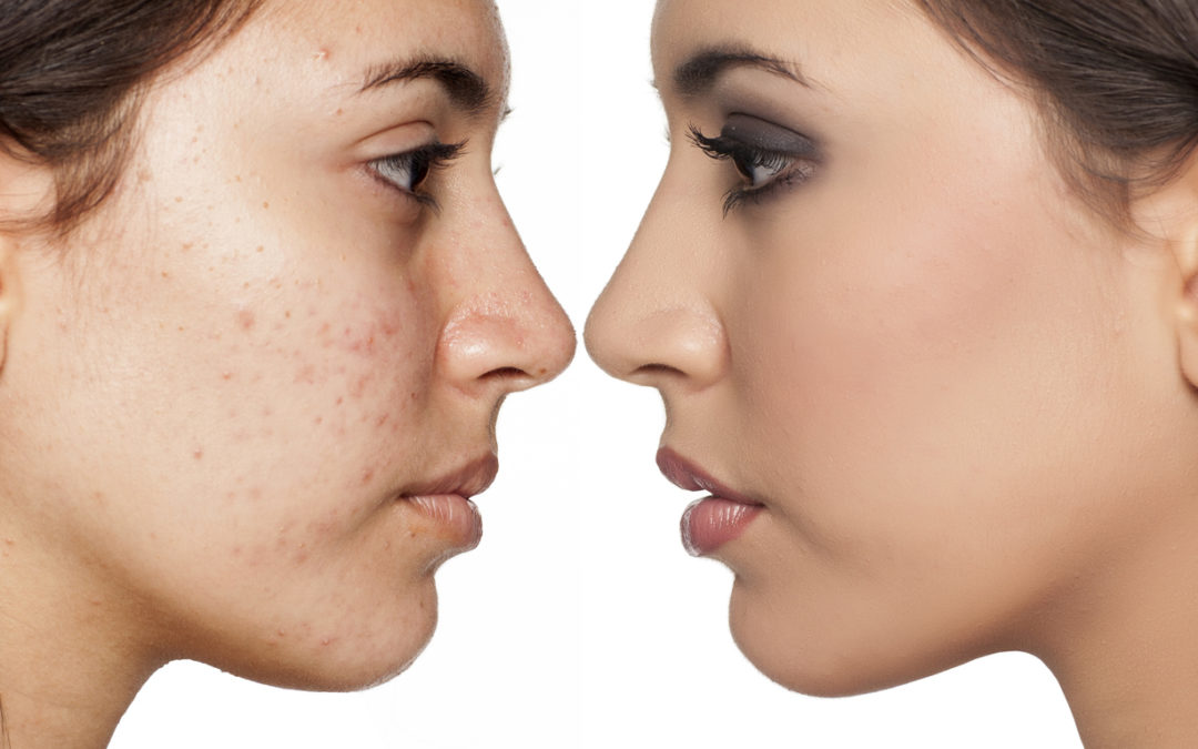 Chinese Medicine for Acne