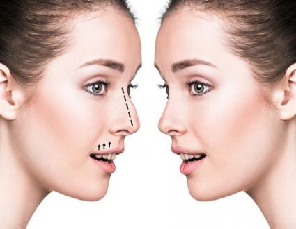 All to consider Aesthetic Plastic Surgery utilizing laze